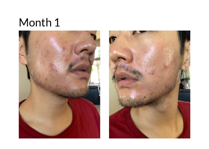 Tretinoin results asian man month 1